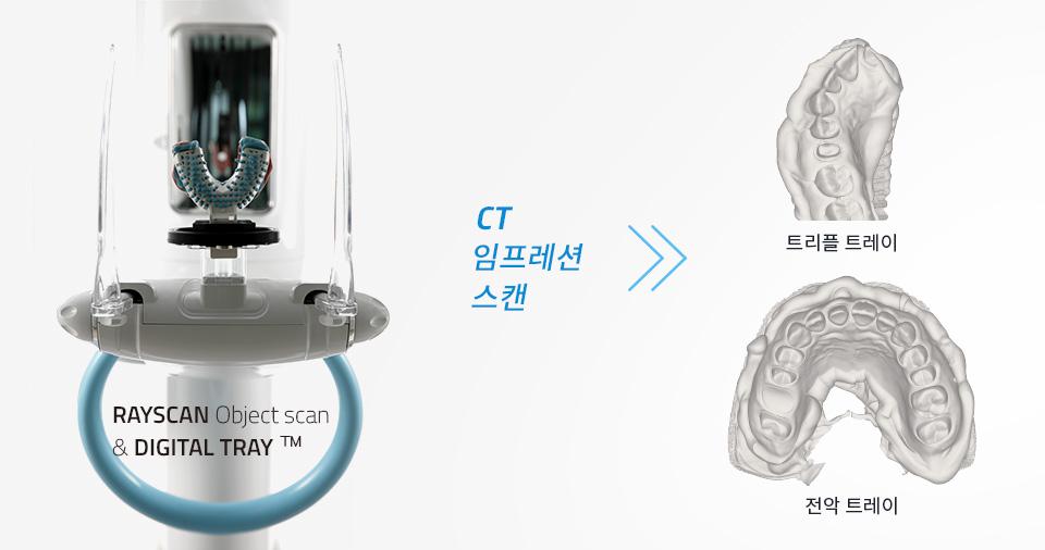 치과용 3차원 스캔 방법의 새로운 혁신
