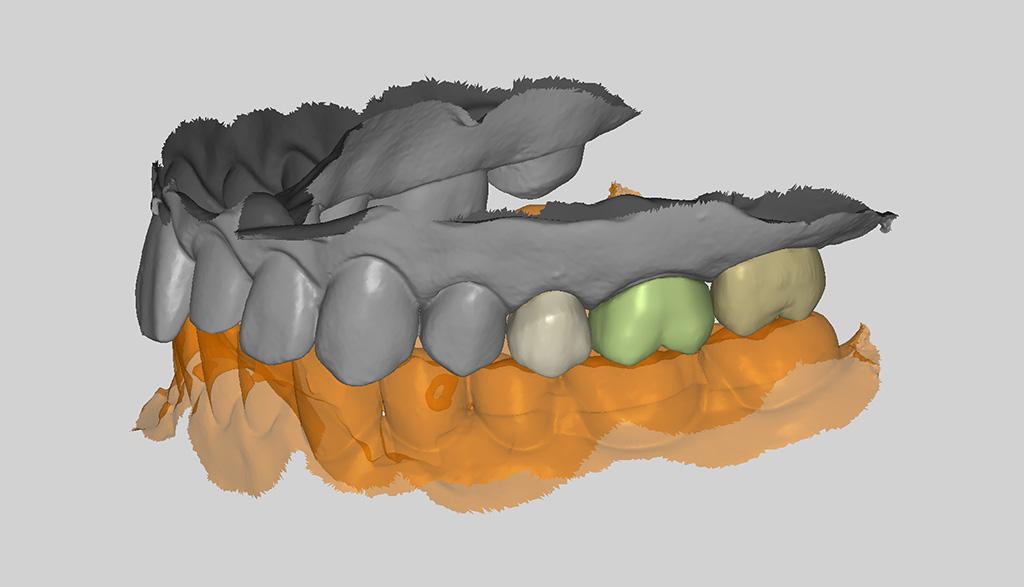 RAYDENT designer 인공지능을 이용한 환자 맞춤형 치아설계